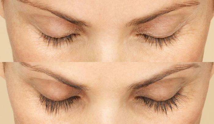 botox eyelashes photo before and after reviews